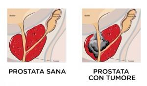 video di operazione alla prostata