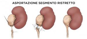 stenosi ureterale sinistra