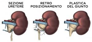 qual è la definizione di uretere